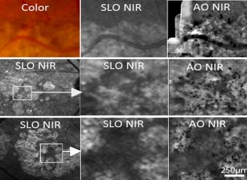 High resolution imaging for ophtalmology: adaptive optics and beyond